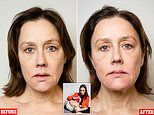 The all-over Botox that won't freeze your face