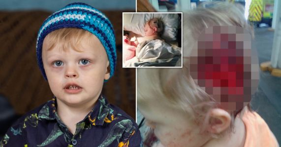 Toddler survives having scalp ripped off by dog thanks to woolly hat