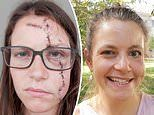 Yoga teacher was left with her face paralysed and scarred after being hit by a car