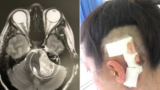 Woman's anxiety was actually a tumour growing in her brain for 10 years