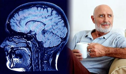 Parkinson's disease: 'Can you hold onto this please?' One sign of the disease