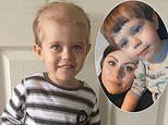 Son, 2, asked if he 'could put his hair back on' when it began falling out during cancer treatment