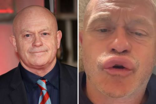 Ross Kemp stung by wasps on his face as he shows off very swollen lips