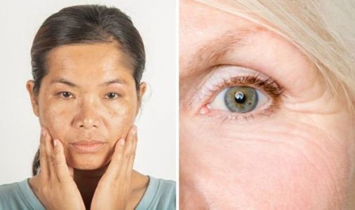 Menopause skin: The 4 ways menopause takes a toll on your skin