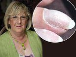 Grandmother claims manicures saved her life after her beauty technician spotted signs of lung cancer