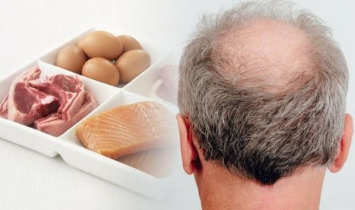Hair loss treatment: Making sure you're getting enough protein may be key for hair growth