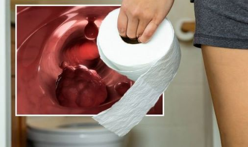 Bowel cancer symptoms: 'Ribbon-like' poo is an early warning sign of bowel cancer