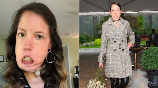 Woman with disfigurement that stops her smiling becomes catwalk model