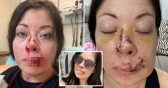Mum left with lip 'hanging off' after dog attacks her at barbecue