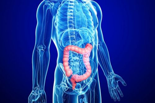 Dr Miriam Stoppard: Worrying rise of bowel cancer among young
