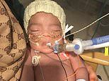 Judge rules brain-damaged three-month-old Midrar Ali's life support should go off