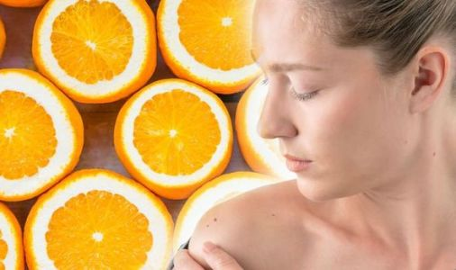 Vitamin C deficiency: Major skin symptom that could mean you have a vitamin C deficiency