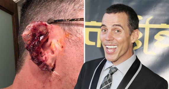 Steve-O's ear injury is not for the faint of heart as he attempts to 'glue' it back together