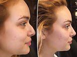 The Bachelor's Abbie Chatfield debuts her new nose after undergoing a $990 non-surgical rhinoplasty