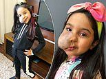 Girl, six, who wouldn't look in the mirror due to a birthmark on her face now inspiring others