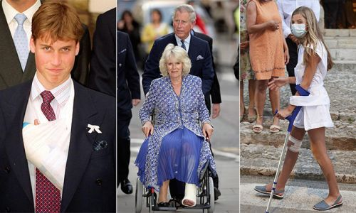 When royals suffer injuries from black eyes to broken bones - ouch!