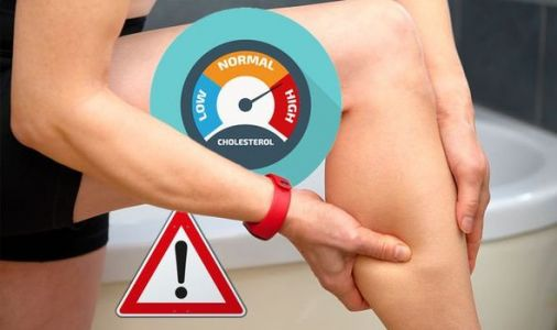 High cholesterol warning - do your legs feel like this? How to reveal your risk