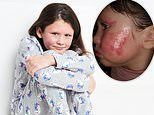 Girl with severe eczema, eight, lands dream job modelling for M&S