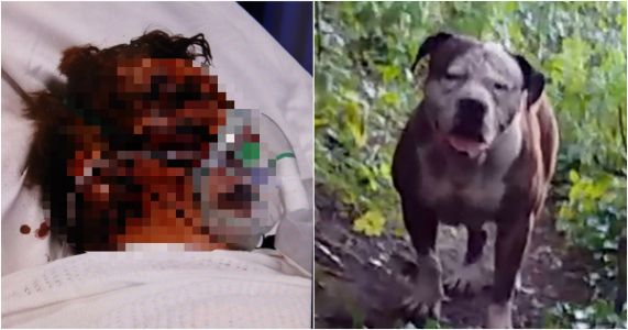 Pensioner's horrific injuries after being dragged into bushes by dog
