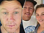 Former MAFS star Susie Bradley talks about injecting Botox into her fiancé Todd Carney's forehead