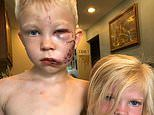 Anne Hathaway heaps praise on Wyoming boy, 6, after he was mauled by dog which had attacked sister