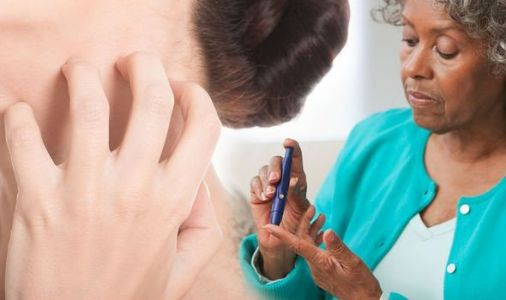 Type 2 diabetes warning - does your skin look like this?