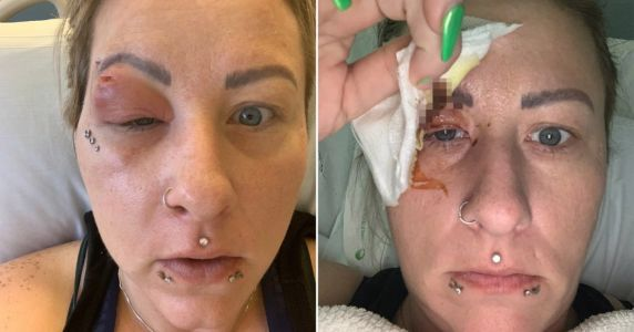Hairdresser nearly lost her eye after hair splinter caused a serious infection