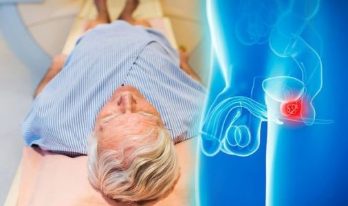 Prostate cancer: New urine test will 'transform' diagnosis and treatment of condition