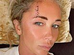 Atomic Kitten's Jenny Frost rushed to hospital as she smashes her head on a rock in Ibiza