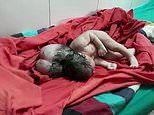 Baby is born with 'THREE heads' in India