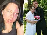 Mother with facial birthmark who thought she would never find love says she has the dream husband