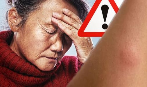 Rheumatoid arthritis symptoms: Experiencing 'firm lumps' in this body part could be a sign