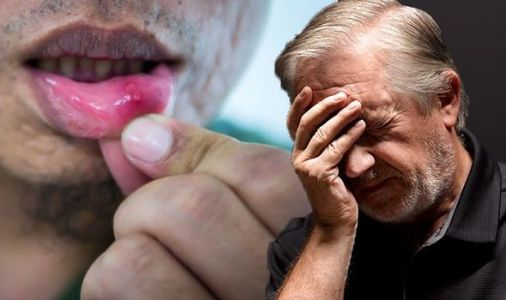 Cancer symptoms: Why you should ALWAYS see a GP if you have long-lasting mouth ulcers
