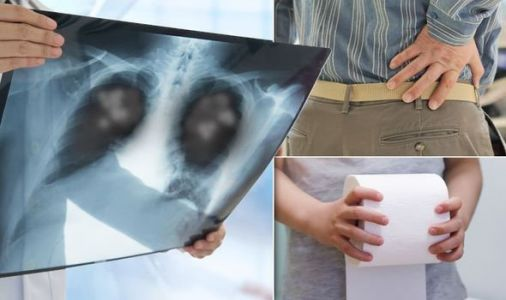 Lung cancer symptoms: Four 'surprising' signs of lung cancer 'you may not expect'