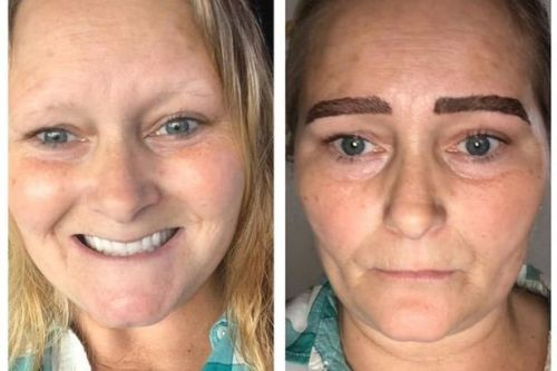 Woman forced to grow a fringe to hide 'monster brows' after beauty treatment goes wrong