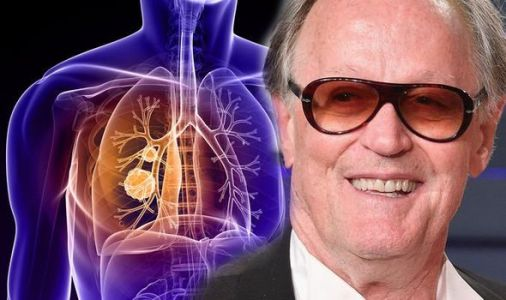 Peter Fonda health: Hollywood star has died from lung cancer - what are the signs?