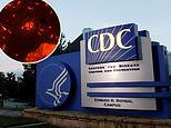CDC investigating contaminated 'bone repair product' linked to over 100 tuberculosis cases