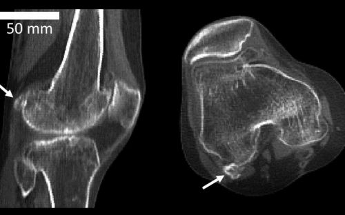 Bone which increases arthritis risk on the rise, scientists find, as better nutrition could be to blame