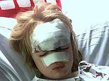 Eight year old boy Charlie Graver Chester le Street skin graft on face after car crash
