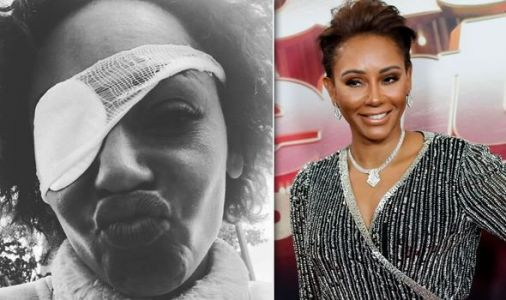 Mel B health - signs and symptoms of The Spice Girls star's 'very very scary' condition
