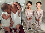 Twin boys, 3, had only 10 per cent chance of surviving before undergoing surgery in the womb