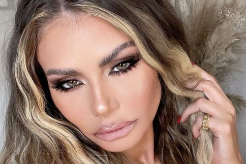 TOWIE's Chloe Sims has face fillers removed as she shares before and after pics