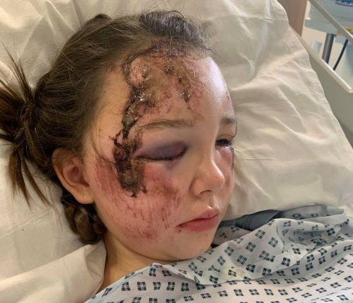 Shocking pictures show injuries to girl, 11, who was hit by a bus