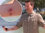 Declan Donnelly reveals burn on his arm was caused by tending to his daughter Isla