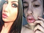 Mother 'scarred for life' after 'botched' £70 fillers caused her lips to swell and turn white