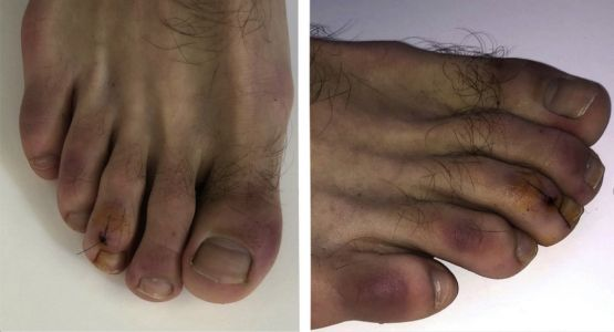 New 'Covid toes' symptom 'can turn feet purple for months'