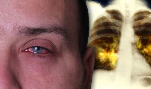 The lung cancer symptom on your face you may be ignoring - does your eye look like this?