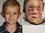 Horrific injuries of Michigan boy, Camdon Bozbell, who was mauled by his pet pit bull named Chaos
