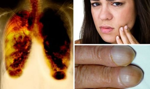 Lung cancer: Three 'unusual' symptoms to watch out for - what do your nails look like?