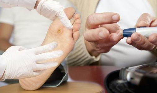 Type 2 diabetes: High blood sugars causes major feet issues increasing amputation risk